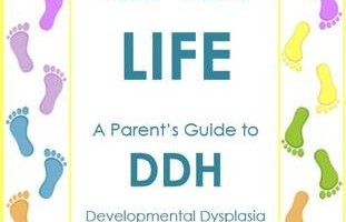 Guest Post – DDH – The Life Changing Condition